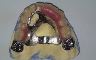 Upper skeletal prosthesis with telescopic systems and with 2 ACK - Clinical case 20, Photo 2