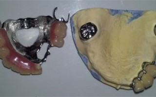 Upper skeletal prosthesis with telescopic systems and with 2 ACK - Clinical case 20, Photo 5