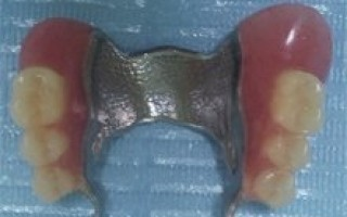 Upper and lower skeletal prosthesis with telescopic systems - Clinical case 21, Photo 3