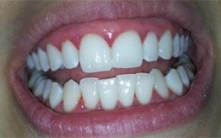 Professional whitening - Clinical case 22, Photo 3