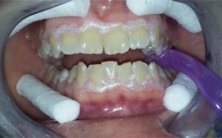 Professional whitening - Clinical case 12, Photo 2