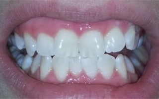 Professional whitening - Clinical case 12, Photo 3