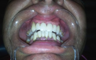 Dental bridges - Clinical case 23, Photo 2