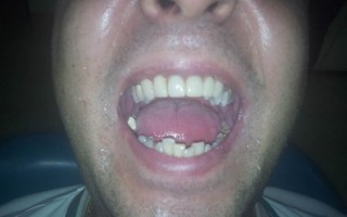 Zirconia fixed dental bridge - Clinical case 11, Photo 2