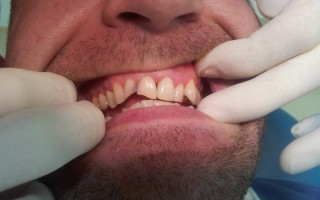 Composite filling restorations - Clinical case 9, Photo 1