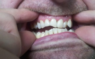 Composite filling restorations - Clinical case 9, Photo 2
