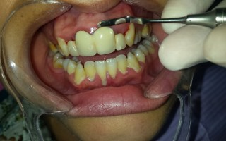 Restoring treatments and metal-porcelain crown - Clinical case 26, Photo 1