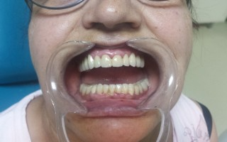 Upper metal-ceramic bridge and lower skeletal one - Clinical case 16, Photo 1