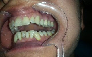 Metal-ceramic dental bridge - Clinical case 19, Photo 2
