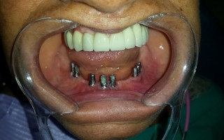 Implants and metal-ceramic fixed bridge - Clinical case 17, Photo 1