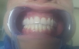 Metal-porcelain dental crowns - Clinical case 10, Photo 2