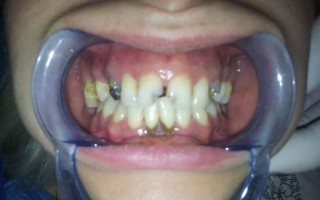 Metal-porcelain dental crowns - Clinical case 10, Photo 1