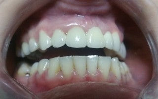 Fixed ceramic and metal-ceramic crowns - Clinical case 33, Photo 2