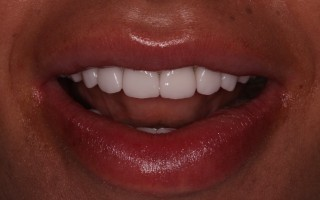 EMax dental crowns - Clinical case 37, Photo 1