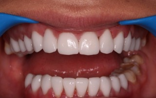EMax dental crowns - Clinical case 37, Photo 2