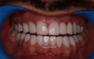 EMax dental crowns - Clinical case 39, Photo 1