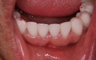 EMax dental crowns - Clinical case 39, Photo 2