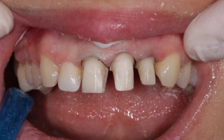 E-Max crowns and facets - Clinical case 40, Photo 1