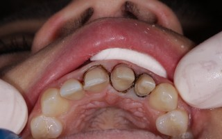 E-Max crowns and facets - Clinical case 40, Photo 2