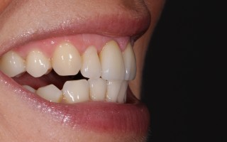 E-Max crowns and facets - Clinical case 40, Photo 4