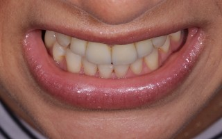E-Max crowns and facets - Clinical case 40, Photo 6